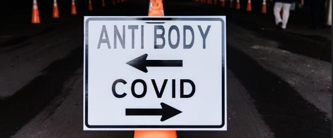 anticuerpos COVID