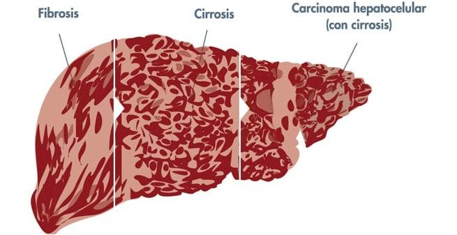 Nuevos enfoques para frenar la fibrosis hepática