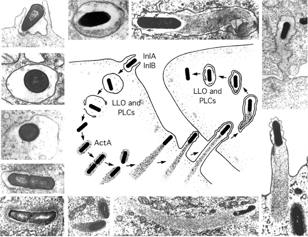 licteriosis