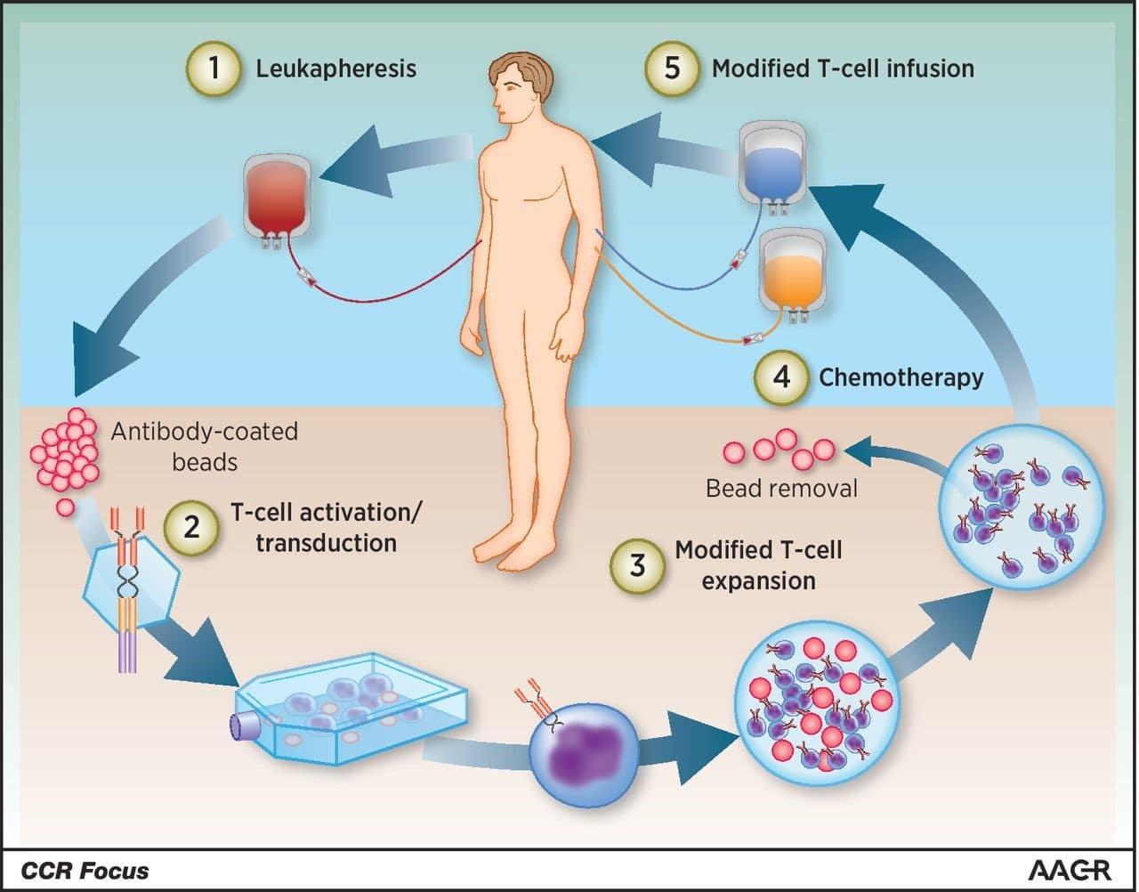 Terapia con células T para el cáncer de próstata metastásico