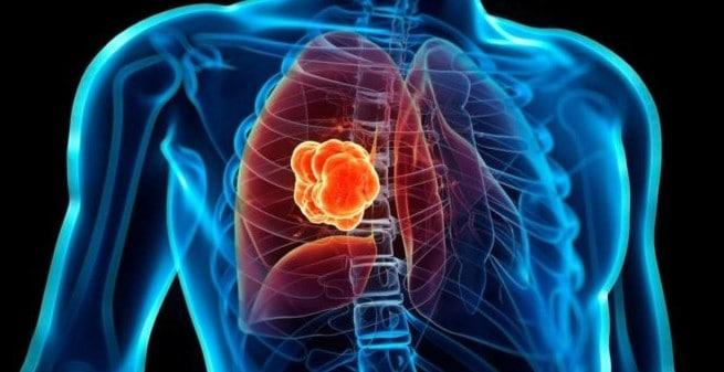 Un nuevo abordaje mejora la supervivencia del cáncer de pulmón